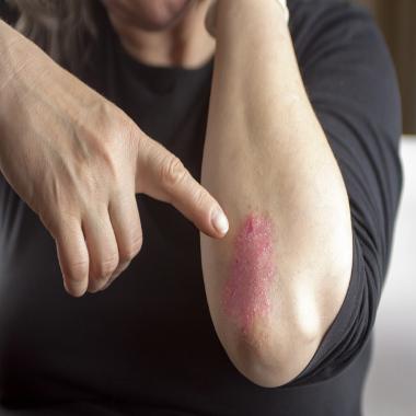 What causes psoriatic arthritis